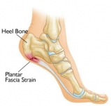 Foot with Plantar Fascitis